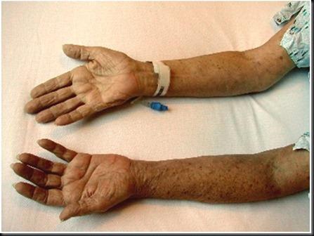 arm-fig1