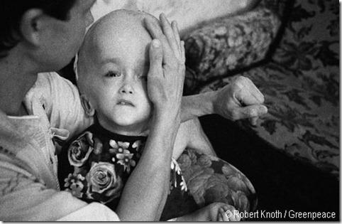 chernobyl-disaster-victim-exposure-to-radioactive-iodine